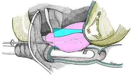La biopsia prostatica