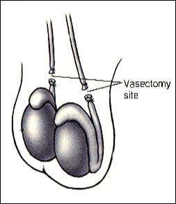 vasectomy1