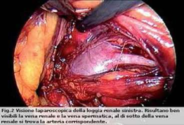 La chirurgia del rene non sempre aiuta l'anziano