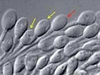 La frammentazione del DNA spermatico