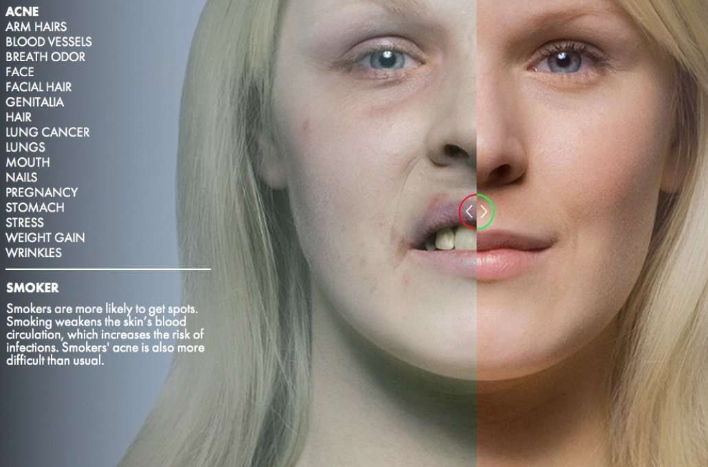 Tumore della vescica e Fumo di sigaretta: una stretta correlazione.